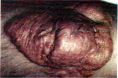 Спадкові хвороби обміну ліпідів   Генні (молекулярні) хвороби