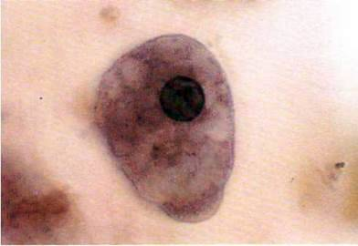 Амеба кишкова (Entamoeba coli)   Тип Саркоджгутикові Sarcomastigophora. Клас Справжні амеби Lobosea